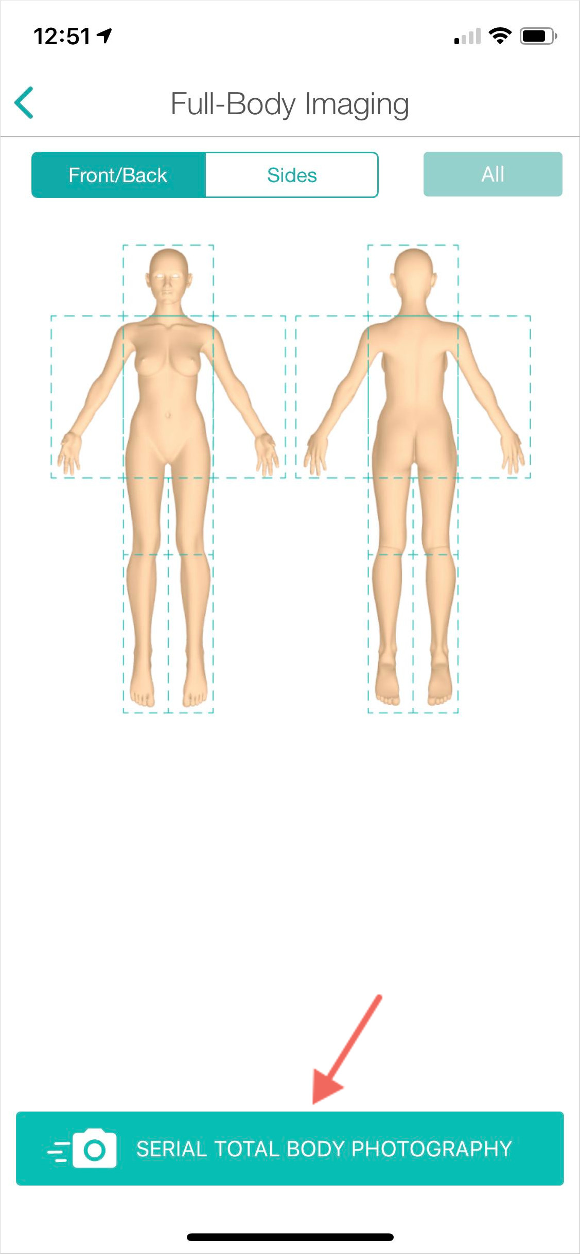 4._Serial_TB_imaging.jpg